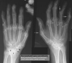 arthritis-care